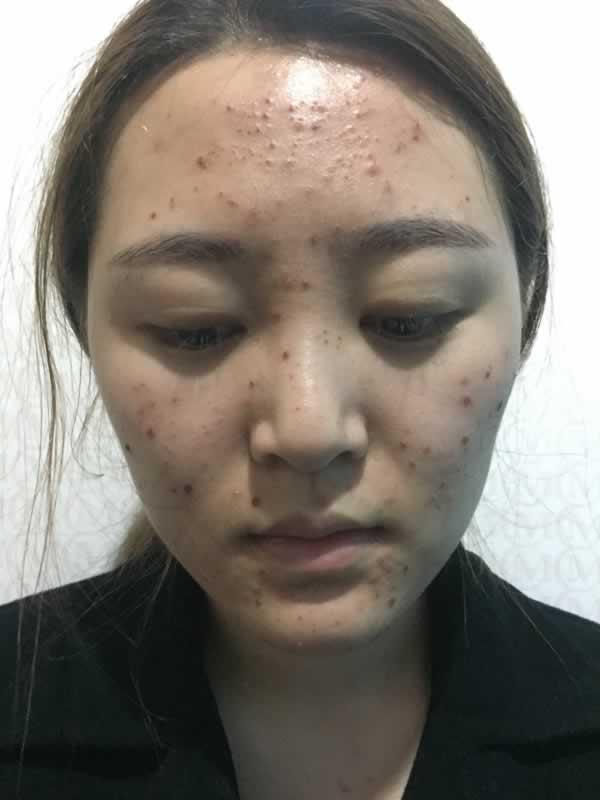 广州美贝尔整形医院激光祛痘让我从此告别长痘的烦恼 。