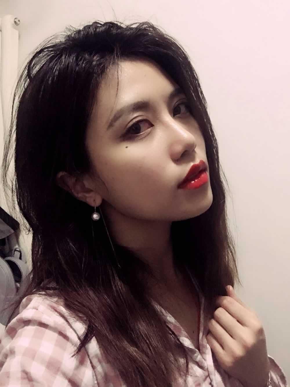 在北京医疗美容医院做完面部脂肪填充是不是直接晋升成小仙女了