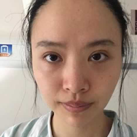 在上海长征医院做的下巴截骨术,闺蜜说不敢带男朋友让你认识
