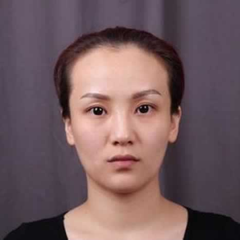 【下颌角整形】【V-LINE瓜子脸手术】两项手术,术前是真的害怕,
