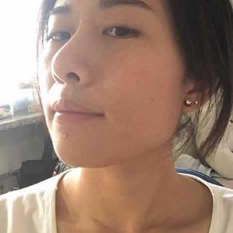 做完下颌角整形手术以后叫我小仙女。