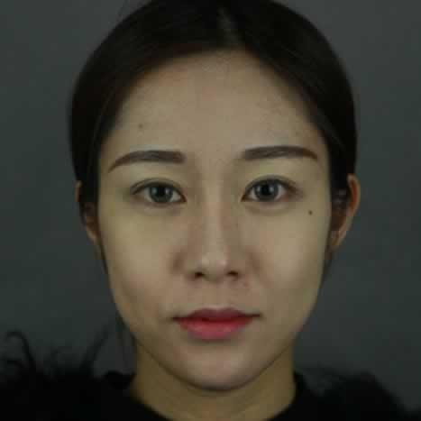 下颌角整形效果是不是超级赞呢。