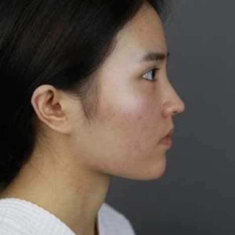 吃着可爱多长大的女孩的美丽日记 下颌角整形