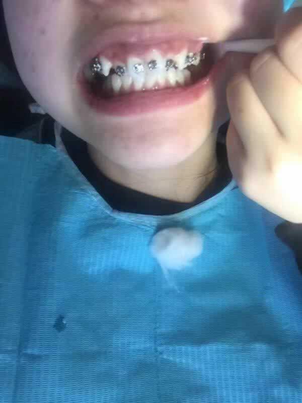 成都圣贝牙科医院给我做的牙齿矫正真的不错,牙齿现在变得很整齐。