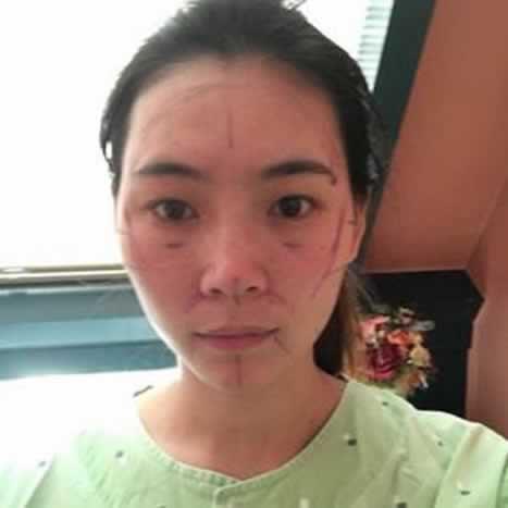 在四川友谊整形美容做的下颌角手术,你们看看效果怎么样。