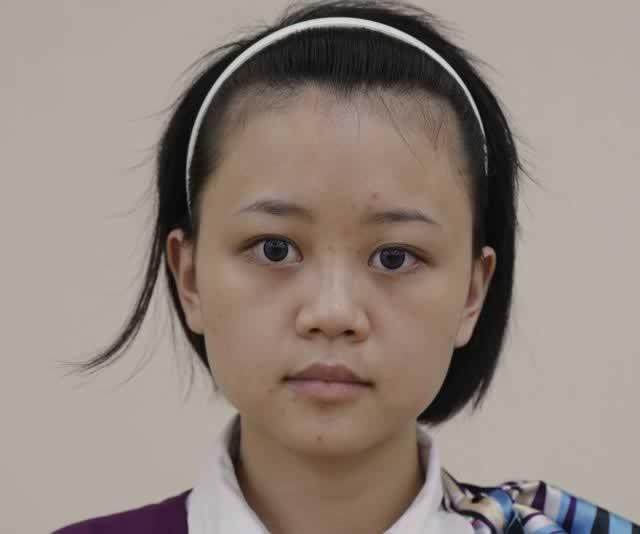 正颌偏颌修复,改脸型颌面矫正案例
