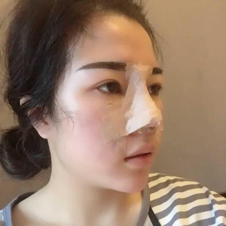 感觉现在鼻综合进入了疤痕增生期,希望自己可以越来越好看
