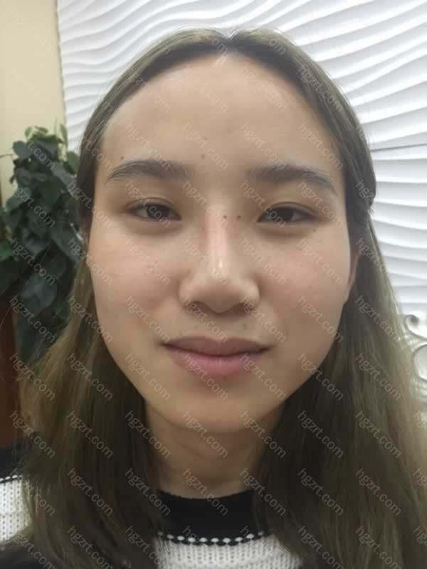 之前是做的硅胶隆鼻