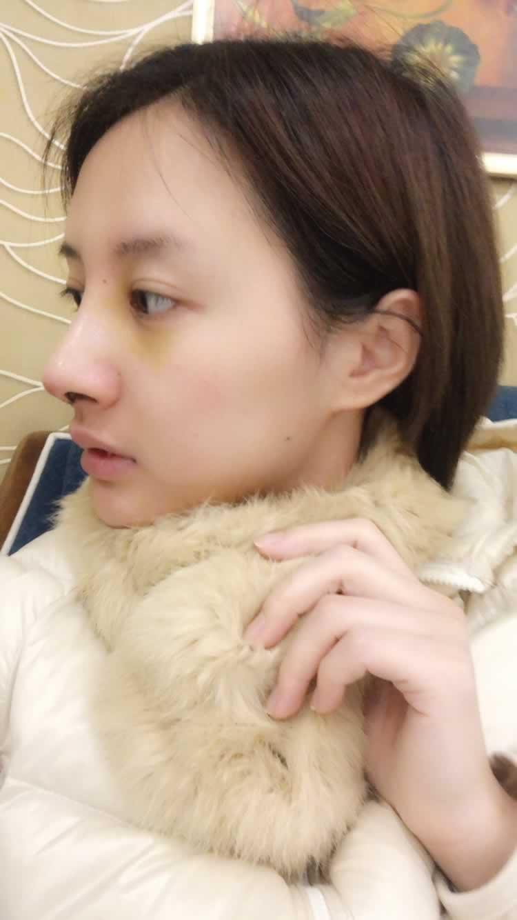 北京八大处做了鼻综合后,觉得自己混血感十足。