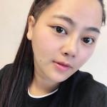 青岛琅梵亚美妍医疗美容院做的面部溶脂术效果很惊人,亲身经历脸变小的全过程。