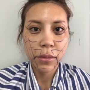面部填充西安自体脂肪填充全脸 饱满丰盈自然 术后不红不肿不发青