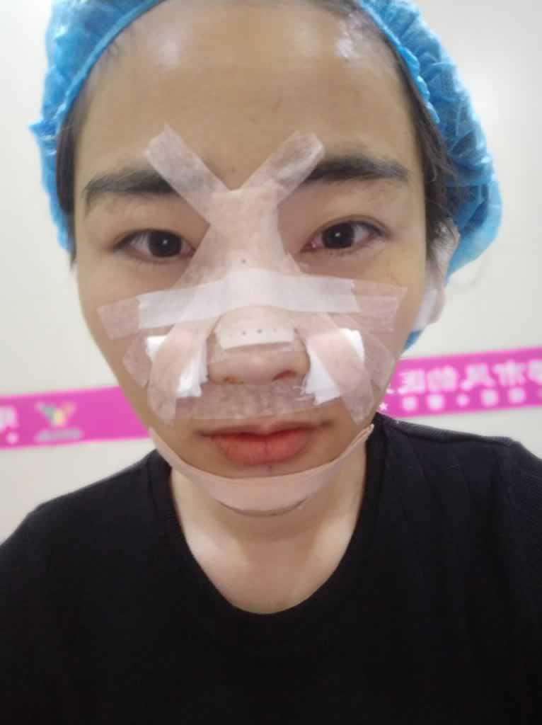 我的鼻综合暂时稳定了一个月基本定型了吧,三个月会越来越好吧
