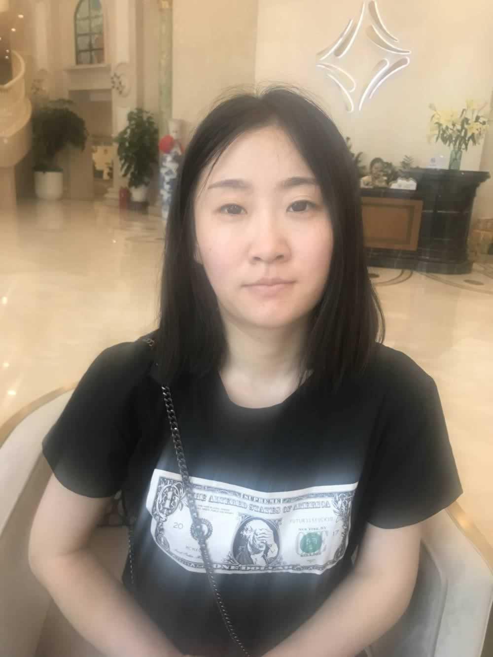 北京玲珑梵宫的假体隆鼻+耳软骨垫鼻尖术效果杠杠滴。