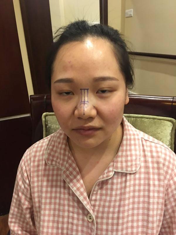 鼻综合后让我的脸型都好看了一百倍。