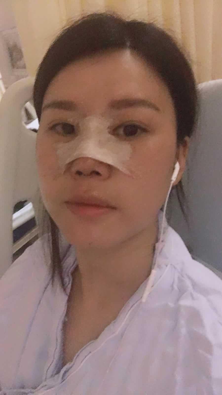 这是做完鼻综合一个月的时候,眼部已经明显消肿