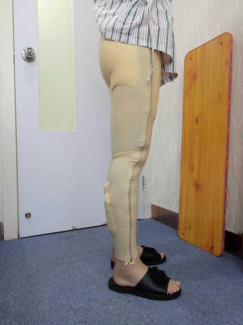 做完吸脂瘦小腿之后我现在的腿型越来越好看了