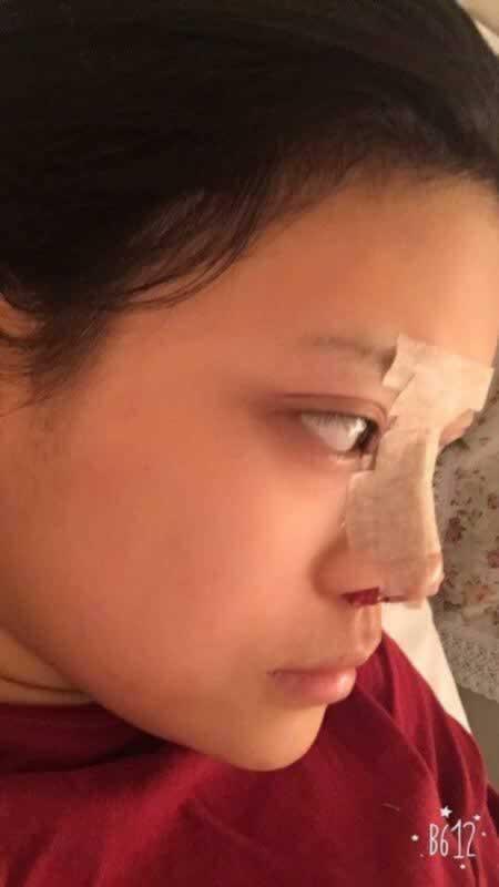 郑州市一美医疗美容隆鼻鼻子的疤痕也不怎么明显了,喜欢