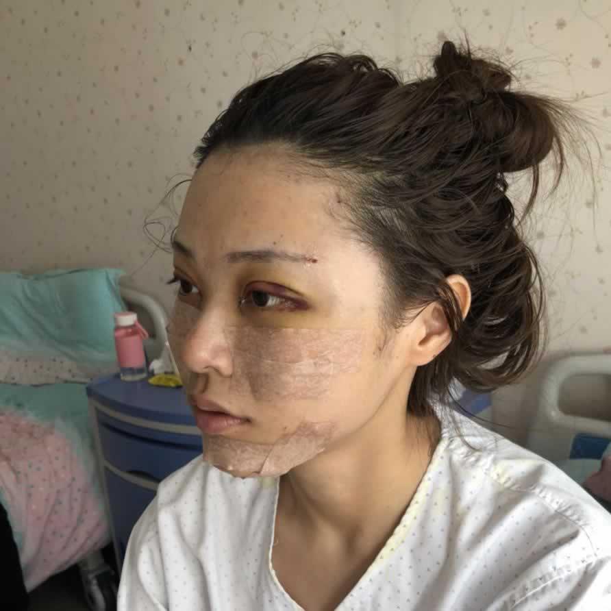 自从在北京当代整形做完脂肪填充手术后,心情都是美美的