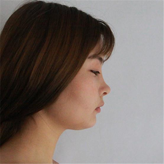 假体隆鼻消肿特别的快,现在感觉已经很自然了
