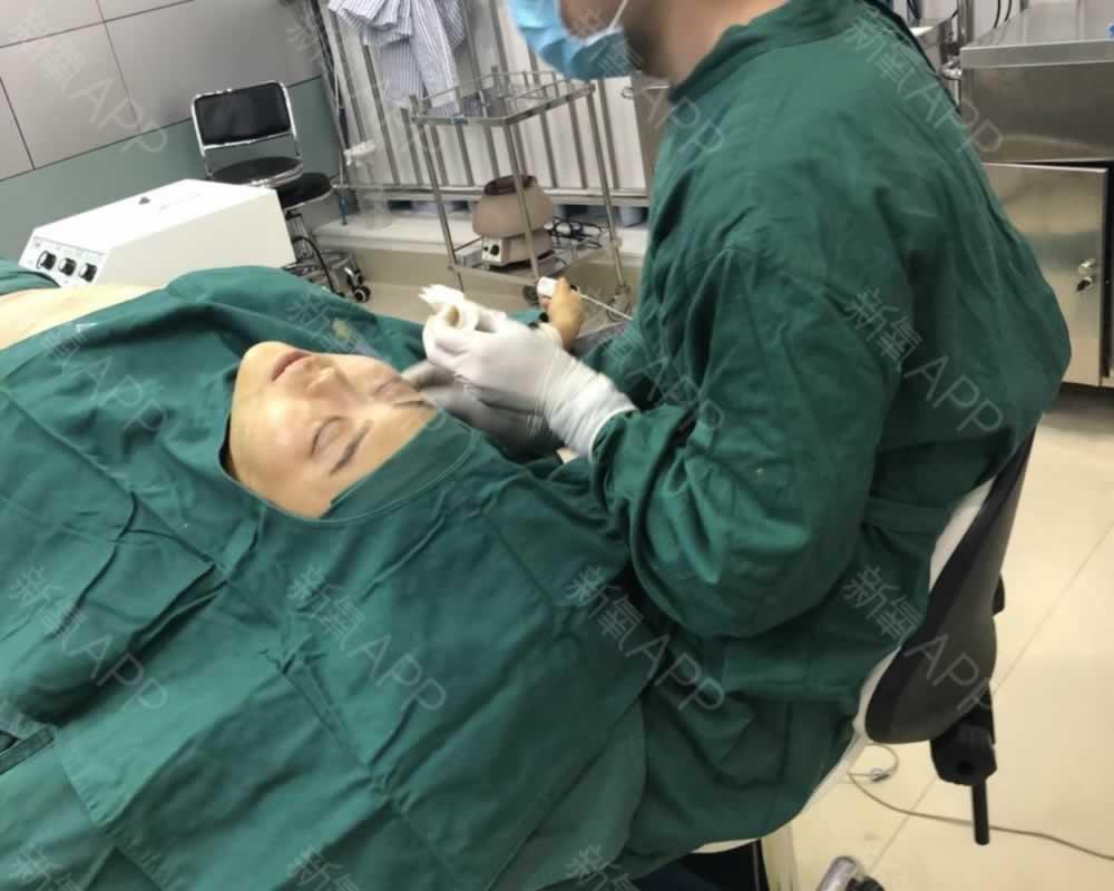 宝宝在北京当代做的面部吸脂术让我从此告别大脸妹的称号
