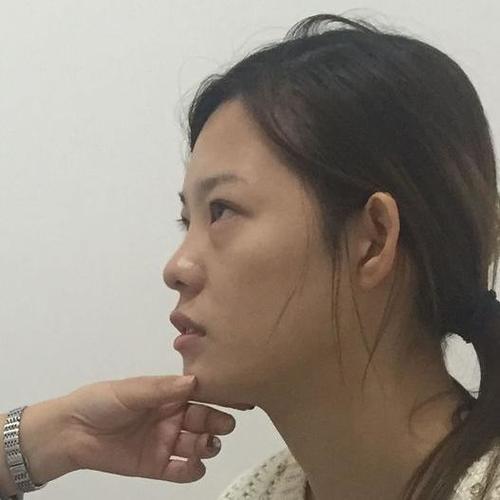 做完隆鼻手术的手术也三个多月了,现在鼻子的形态很自然