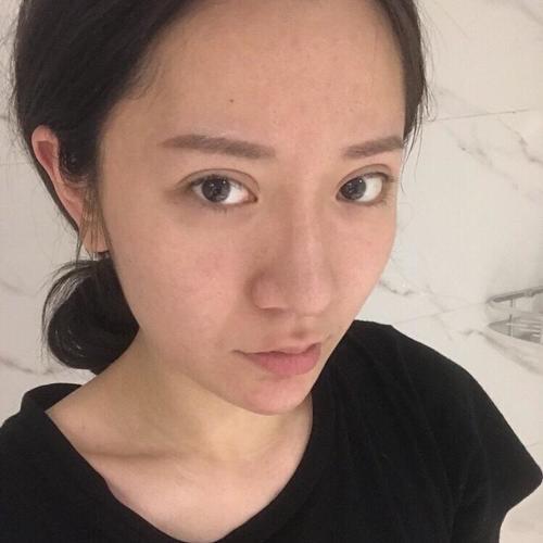 我感觉鼻综合是恢复最快的手术,做完一个星期拆线后第二天我就开始撸妆了