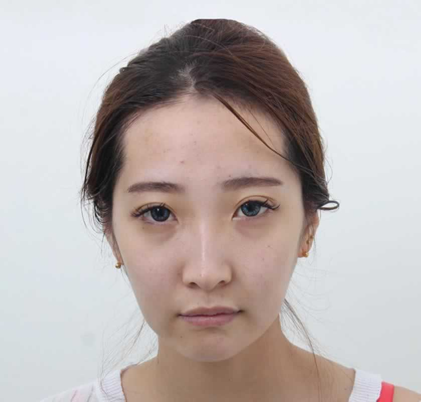 心型少女脸 像韩剧女主一样甜美 全脸填充