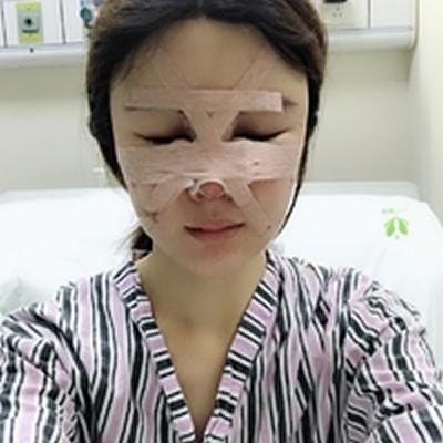 想知道本仙女在广州紫馨做的鼻综合术后45天效果如何,就大方地进来LOOK吧。