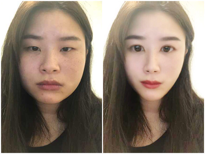 脸部吸脂和眼综合模拟效果