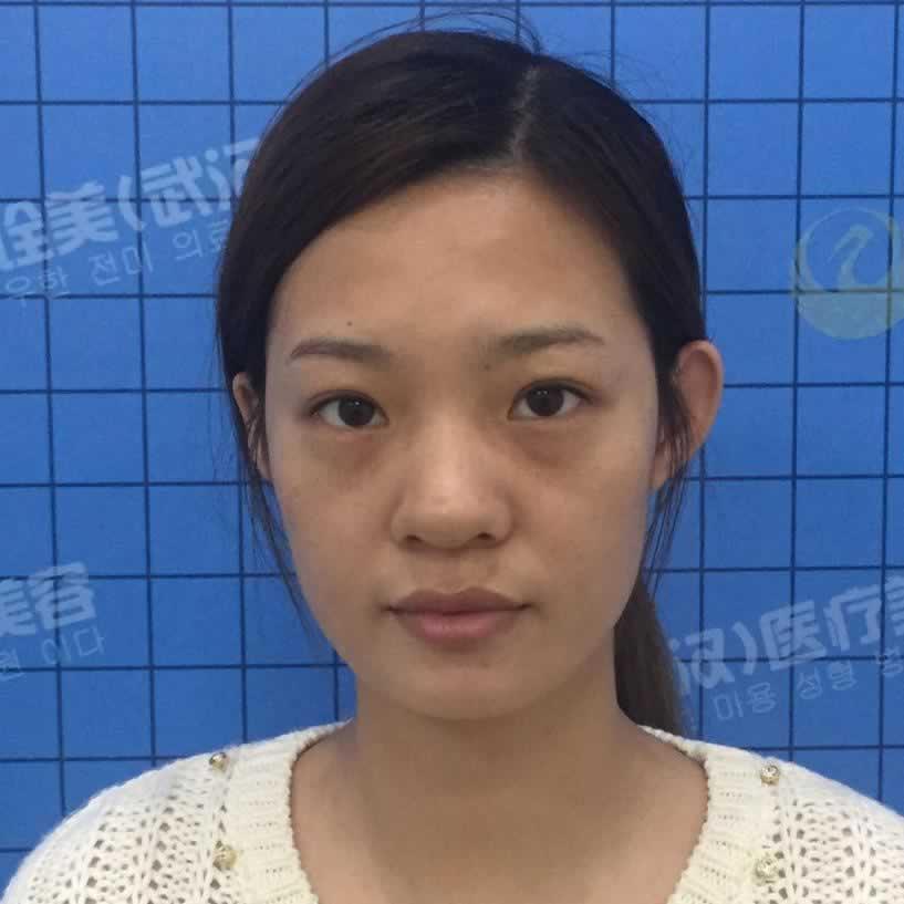 偶在武汉诠美医疗美容做的鼻综合效果是不是惊艳到各位了