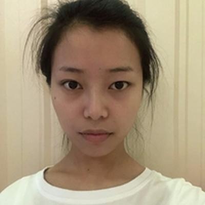 到成都赵善军博士整形做了日思月想的双眼皮效果分享给北鼻们夸赞下