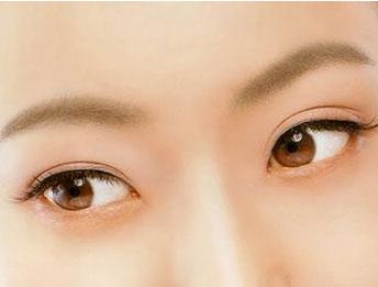 做双眼皮需要注意些什么?