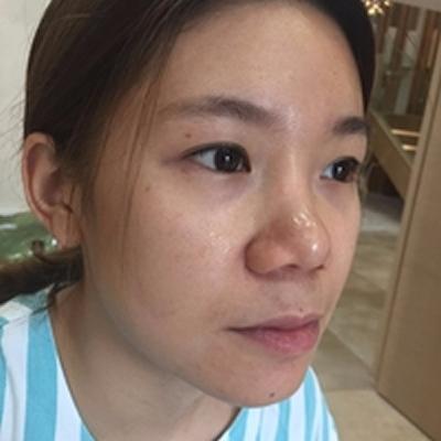 本来丧战斗力的偶在重庆曹阳丽格整形做了鼻部修复手术后 又重拾了颜值和自信