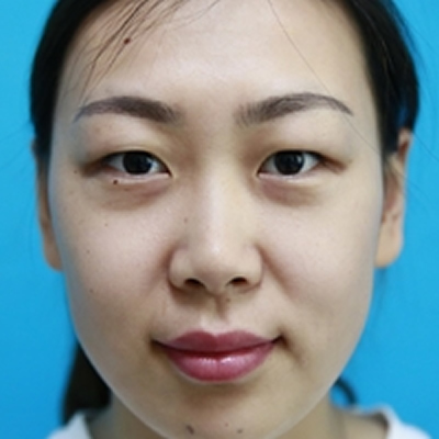 特别想给铁粉们分享下我在淄博壹美整形做的双眼皮术后2个月效果
