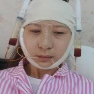 长沙星雅医疗美容的李雯医生技术就是好,给我做的下颌角手术让我变成高级脸。