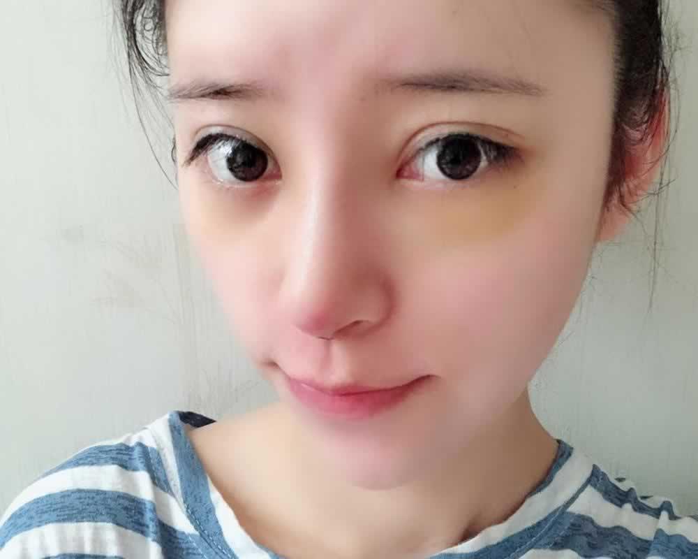 我在上海华美医疗美容医院做的软肋骨隆鼻让我逆袭成女神