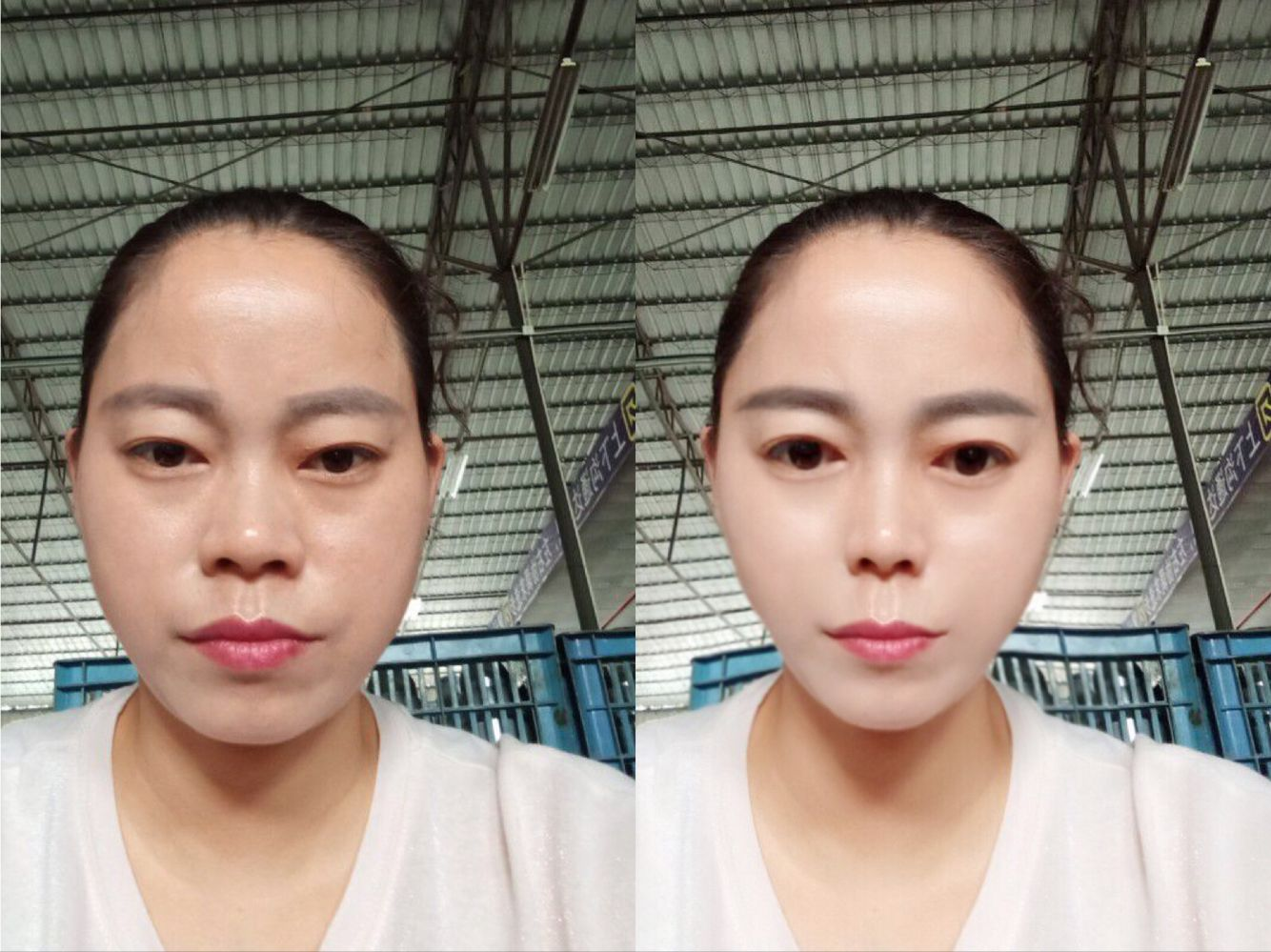 模拟面部吸脂+假体隆鼻效果图