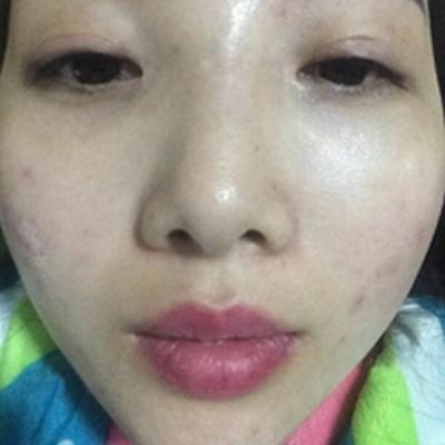 为了美丽跑去北京雍禾美度做了玻尿酸垫下巴,现在感觉自己特有范