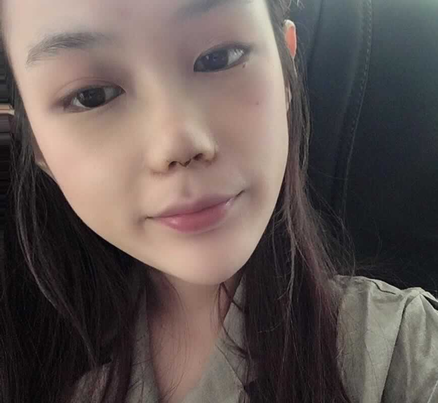 鼻翼缩小手术会不会留有疤痕?疤痕恢复好之后基本上是看不见的。
