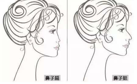 肋软骨隆鼻术前,术后的护理及注意事项