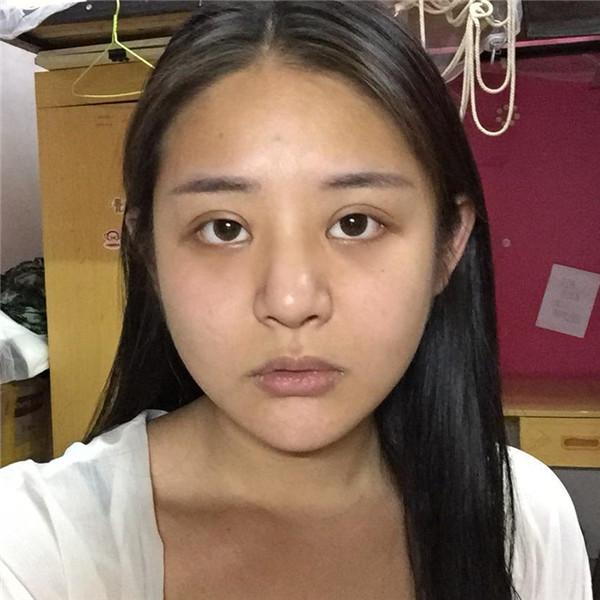 前段时间在石家庄雅芳亚医疗美容鼻综合是大手术吗,其实效果好了就行啊