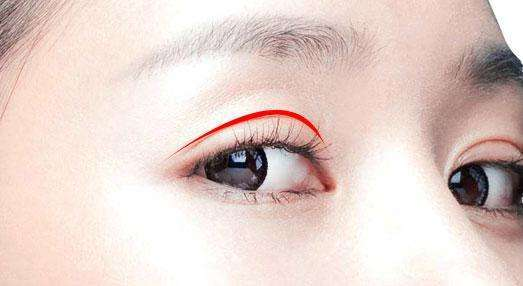 做三点式双眼皮术前需要注意什么?