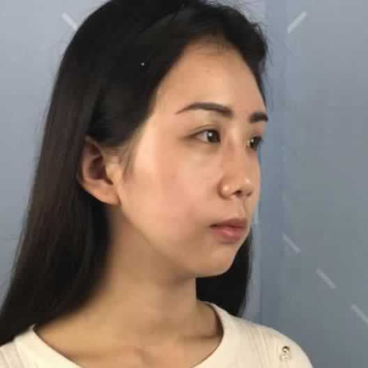面部填充什么时候能有明显的改善?我觉得要根据自身皮肤的状况来定。