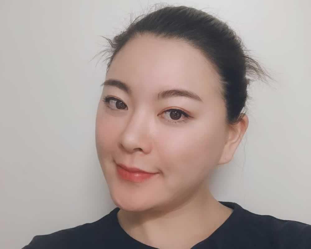 想做面部吸脂就来北京玲珑梵宫医疗美容医院吧,看我的真实经历你就知道有多好了。