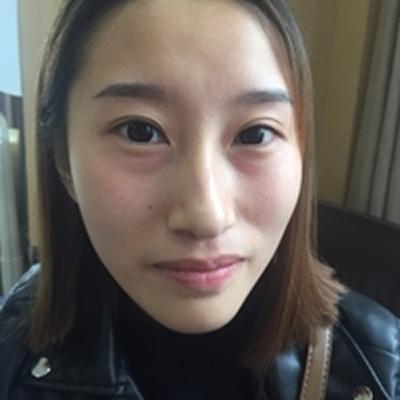 飞到四川华人医联整形做了面部脂肪填充后  感觉自己又可爱又减龄