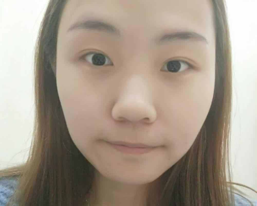 面部填充能保持多久啊?面部填充一般都是长期的