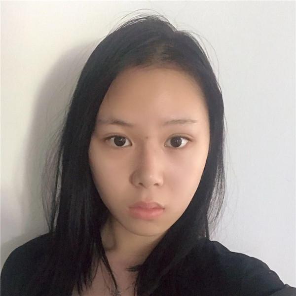 前段时间在杭州做的鼻综合图片,现在发出来让大家看看吧