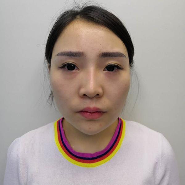 到北京医院做的面部吸脂前后对比效果公布给小婊们看look下
