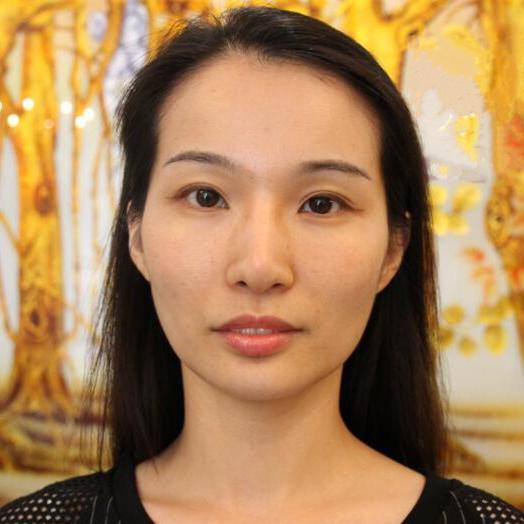 姐妹们问北京医院做全脸脂肪填充会不会出现凹凸不平的情况   我的出来就是没有哦