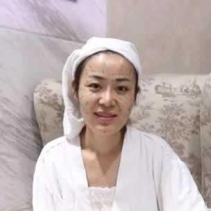 宁波静港整形医院林忠泵院长给我做的面部脂肪填充的真实案例告诉大家 做填充是自体脂肪好还是玻尿酸好